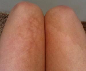 Boala laptopului - aspectul pielii